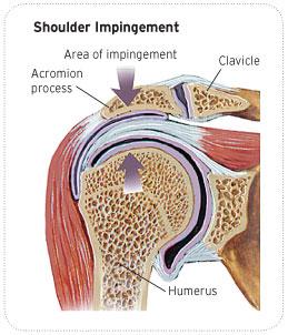 AL_Shoulder_impingement