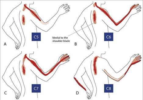 referred-pain